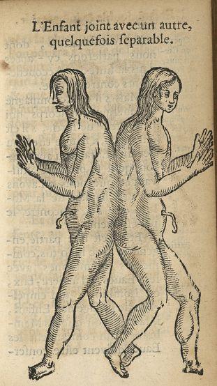 L'enfant joint avec un autre quelquefois separable - L'accoucheur methodique, qui enseigne la manier [...] - Obstétrique. Monstres et monstruosités. France. 17e siècle - med34760x0233