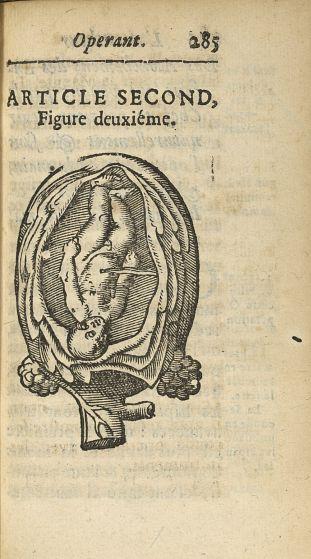 Article second, Figure deuxième [Accouchement par la tête] - L'accoucheur methodique, qui enseigne l [...] - Obstétrique. France. 17e siècle - med34760x0317