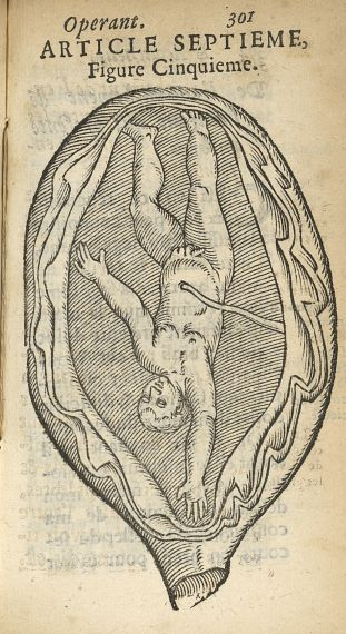 Figure cinquième [Accouchement de l'enfant qui présente un bras] - L'accoucheur methodique, qui ense [...] - Obstétrique. France. 17e siècle - med34760x0333