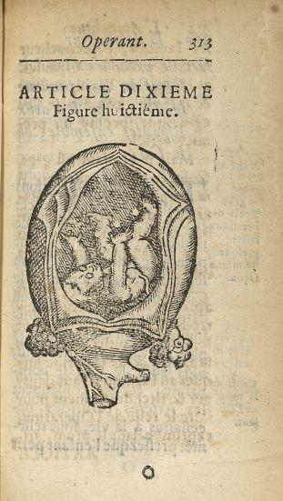 Figure huictième [Accouchement de l'enfant qui présente le dos] - L'accoucheur methodique, qui ensei [...] - Obstétrique. France. 17e siècle - med34760x0345