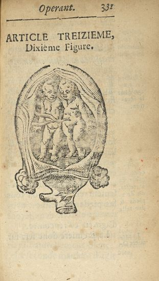 Dixième Figure [Accouchement gémellaire : les deux enfants arrivent ensemble] - L'accoucheur methodi [...] - Obstétrique. France. 17e siècle - med34760x0363