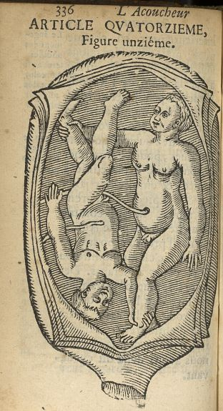 Figure unzième [Accouchement gémellaire : les enfants se présentent tête-bêche] - L'accoucheur metho [...] - Obstétrique. France. 17e siècle - med34760x0368
