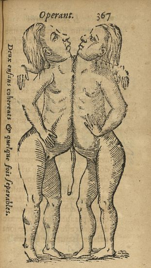 Deux enfans coherents & quelque fois separables - L'accoucheur methodique, qui enseigne la maniere d [...] - Jumeaux siamois. Monstres et monstruosités. Obstétrique. France. 17e siècle - med34760x0399