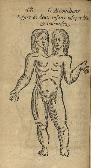 Figure de deux enfans inseparables & identifiez - L'accoucheur methodique, qui enseigne la maniere d [...] - Jumeaux siamois. Monstres et monstruosités. Obstétrique. France. 17e siècle - med34760x0400