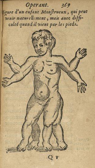 Figure d'un enfant monstrueux, qui peut venir naturellement, mais avec difficulté quand il vient par [...] - Jumeaux siamois. Monstres et monstruosités. Obstétrique. France. 17e siècle - med34760x0401