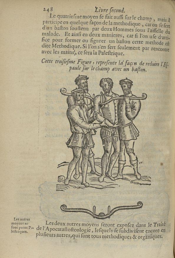Cette troisiesme Figure, represente la façon de reduire l'espaule sur le champ avec un baston - L'Oe [...] - Epaules. Luxations (réduction). 17e siècle - med5207Ax0616