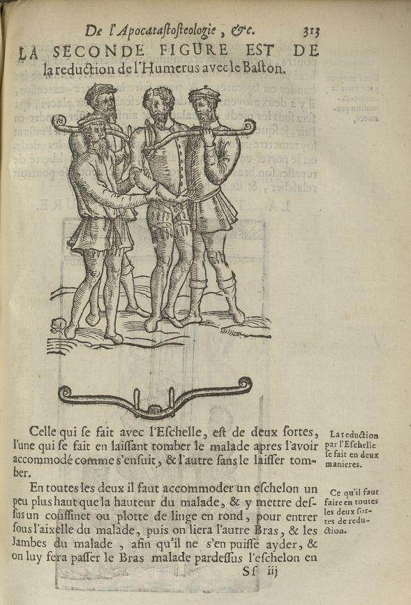 La seconde Figure est de la reduction de l'humerus avec le baston - L'Oeconomie chirurgicale, pour l [...] - Appareils et instruments. Luxations (réductions). 17e siècle - med5207Ax0681