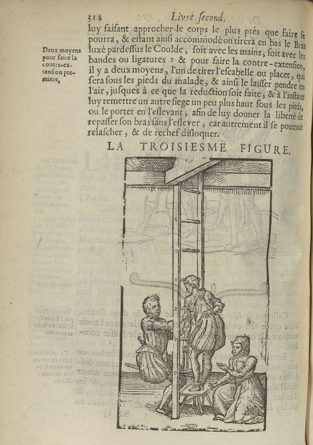 La troisiesme Figure [réduction de la luxation de l'humérus avec une échelle] - L'Oeconomie chirurgi [...] - Appareils et instruments. Luxations (réductions). 17e siècle - med5207Ax0682