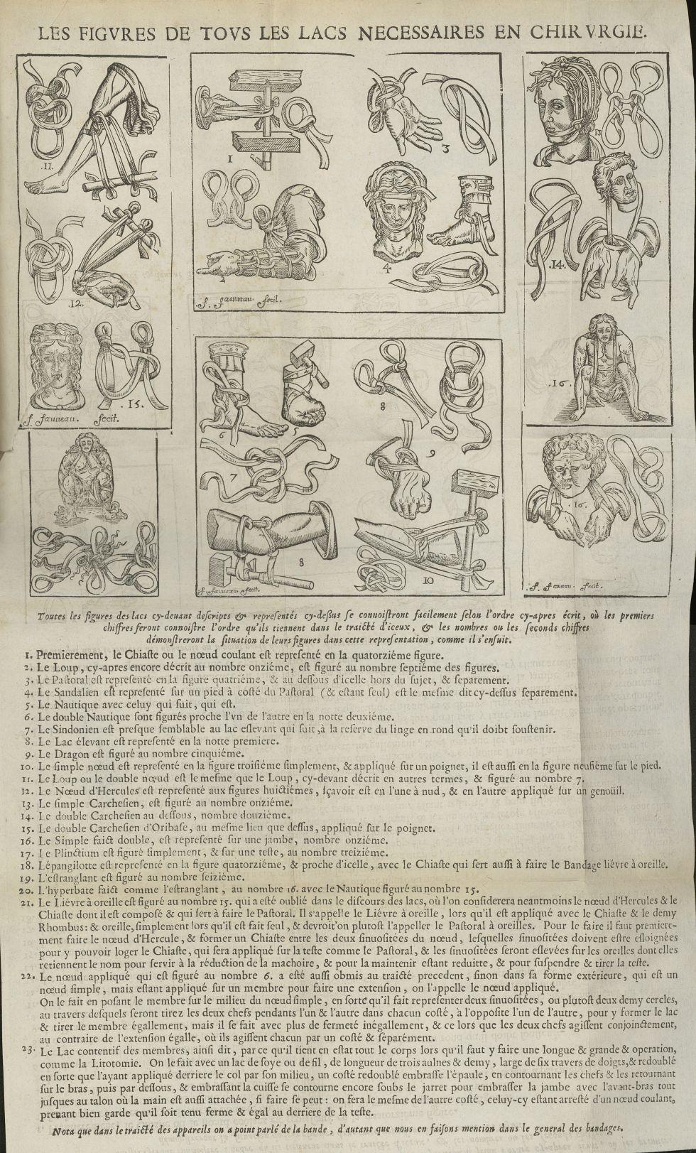 Les Figures de tous les lacs necessaires en Chirurgie - L'Oeconomie chirurgicale, pour le restabliss [...] - Matériels. Pansements. 17e siècle - med5207Ax0726
