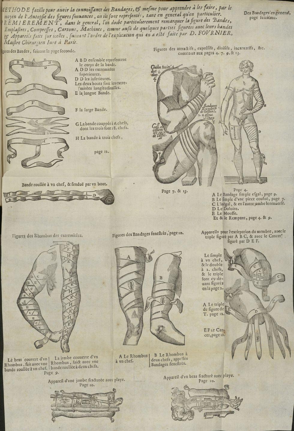 Figures des bandes / Figures des rhombus des extremitées / Figures des attractifs, expulsifs, diuisi [...] - Matériels. Pansements. 17e siècle - med5207Ax0752