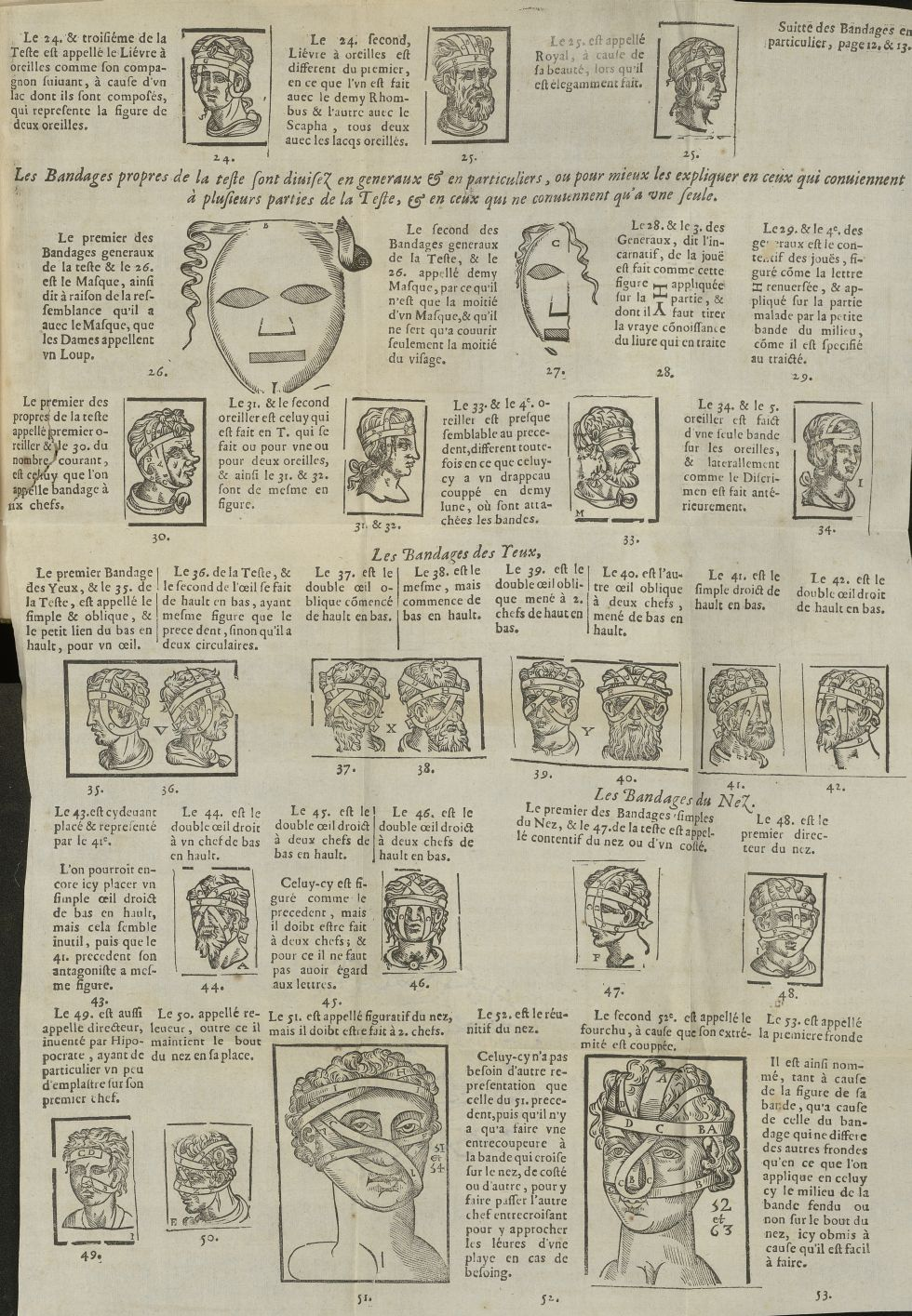 Les bandages propres de la teste / Les bandages des yeux / Les bandages du nez - L'Oeconomie chirurg [...] - Matériels. Pansements. 17e siècle - med5207Ax0766
