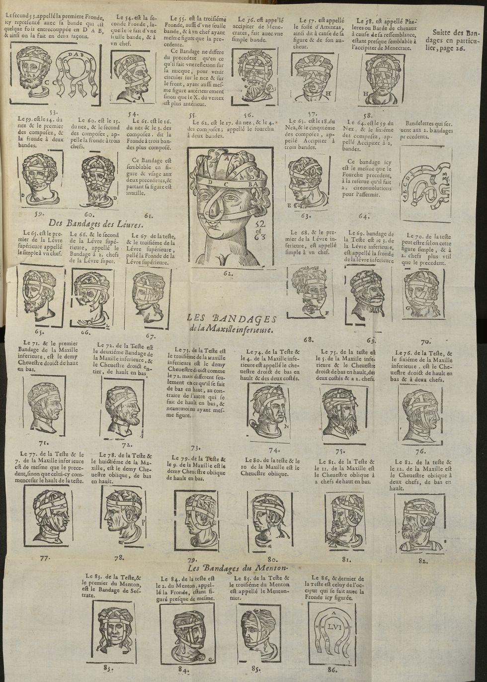 Des bandages des léures / Les bandages de la maxille inferieure / Les bandages du menton - L'Oeconom [...] - Matériels. Pansements. 17e siècle - med5207Ax0782
