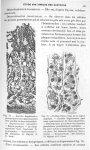Fig. 72. Gastrite dégénérative presque pure (sans épaississement bien sensible du tissu interstitiel [...]
