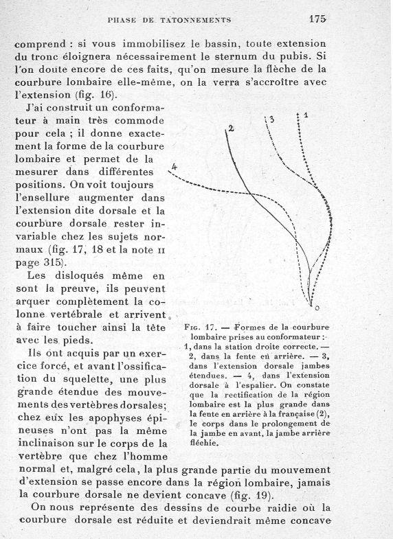 Fig. 17. Formes de la courbure lombaire prises au conformateur : 1, dans la station droite correcte. [...] -  - med65254x0175