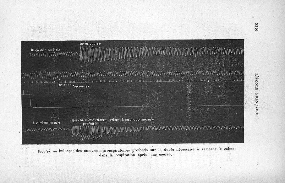 Fig. 74. Influence des mouvements respiratoires profonds sur la durée nécessaire à ramener le calme  [...] - Courbes et tracés. Respiration. 20e siècle (France) - med65254x0318
