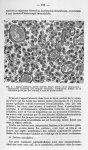 Fig. 9 - Région lombaire, partie centrale (stade ultime de la destruction) - La poliomyélite épidémi [...]