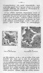 Fig. 17 Début de neuronophagie / Fig. 18 Neuronophagie en évolution - La poliomyélite épidémique (ma [...]