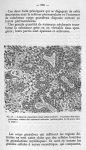 Fig. 27 - Lésion de réparation (type inflammatoire). Tassement des corps autour des vaisseaux scléro [...]