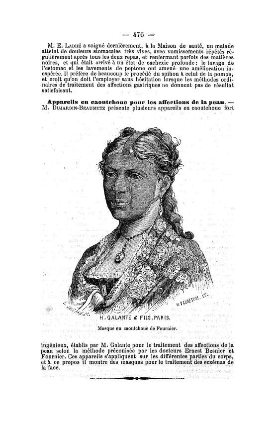 Masque en caoutchouc de Fournier - Bulletin général de thérapeutique médicale et chirurgicale -  - med90014x1880x99x0483