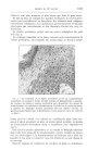 Fig. 3. — Le bourrelet de la figure précédente grossi. La congénératrice cylindrique et normale à dr [...]