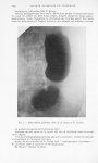 Fig. 2 — Biloculation gastrique. Obs. II (P. Brocq et P. Nicaud) - Bulletins et mémoires de la socié [...]