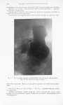 Fig. 5. — Gastrectomie annulaire. Radiographie trois ans après l'intervention. Obs. VII (P. Brocq, A [...]