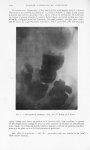 Fig. 7. — Biloculation gastrique. Obs. XII (P. Brocq et A. Cain) - Bulletins et mémoires de la socié [...]