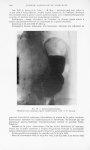 Fig. 10. — Gastro-gastrostomie. Résultat trois semaines après l'intervention. Obs. V (P. Brocq) - Bu [...]