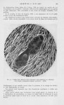 Fig. 2. — Détail des éléments fuso-cellulaires sarcomatoïdes au voisinage d'un boyau malpighien typi [...]