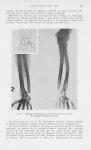 Fig. 2. — Maladie de Madelung : noter l'hémiatrophie interne de l'épiphyse radiale inférieure - Mémo [...]