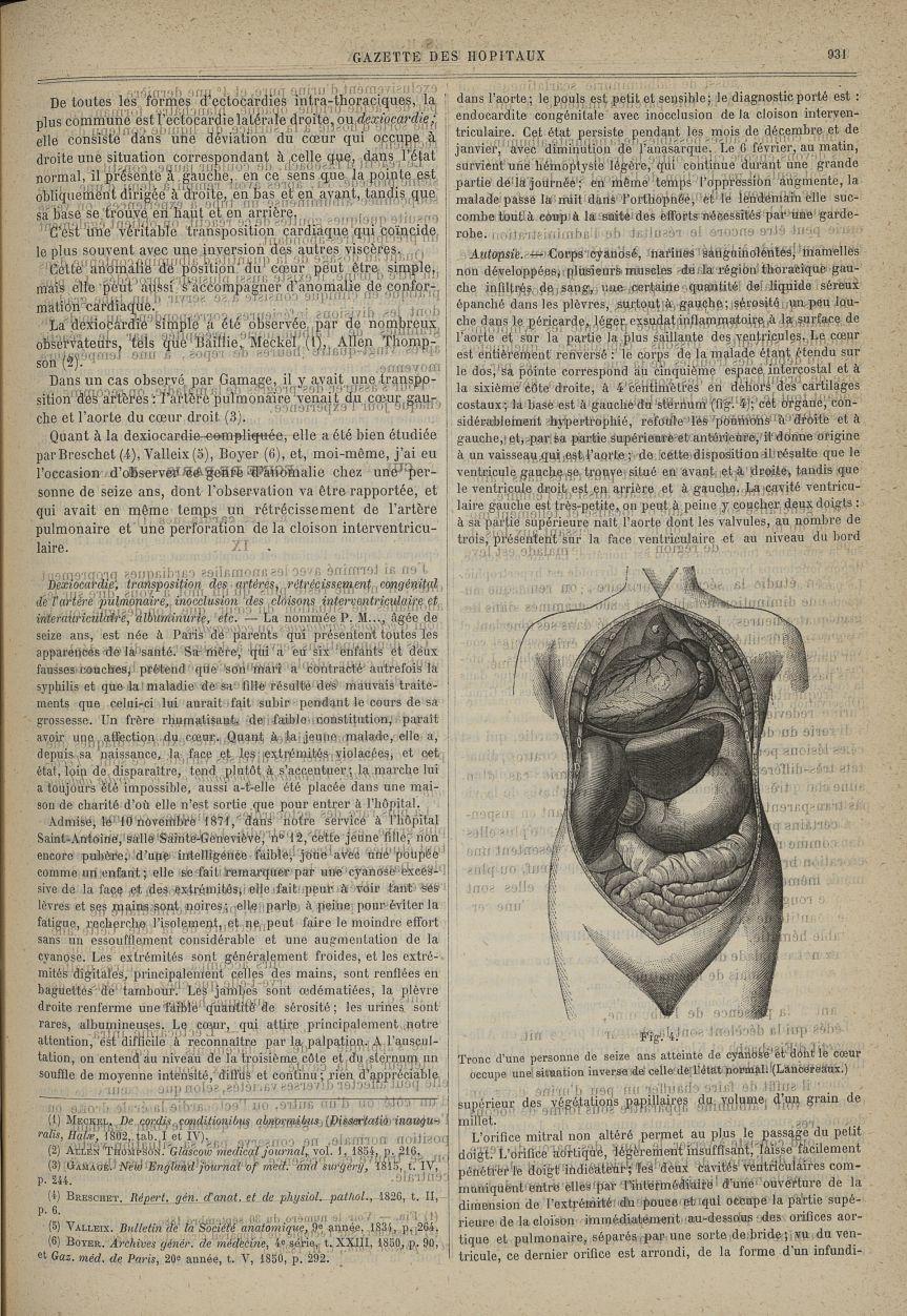 Fig. 4. Tronc d'une personne de seize ans atteinte de cyanose et dont le coeur occupe une situation  [...] -  - med90130x1880x0935