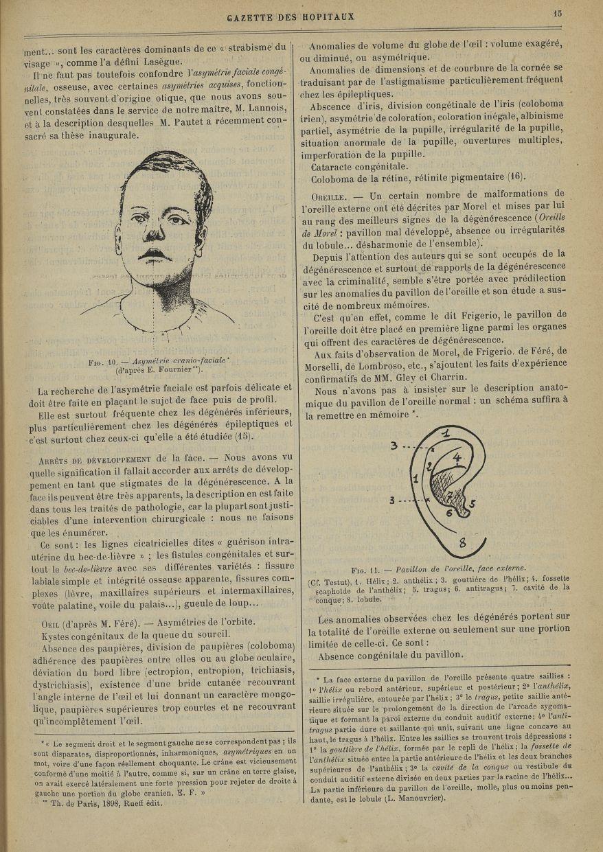 Fig. 10. Asymétrie cranio-faciale (d'après E. Fournier) / Fig. 11. Pavillon de l'oreille, face exter [...] -  - med90130x1901x0021