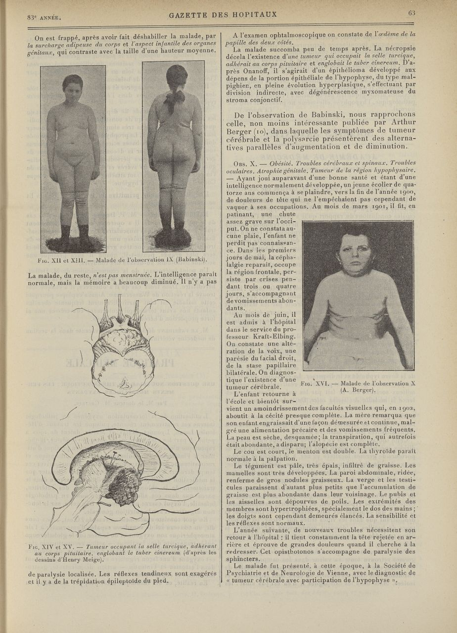Fig. XII et XIII. Malade de l'observation IX (Babinski) / Fig. XIV et XV. Tumeur occupant la selle t [...] -  - med90130x1910x0073