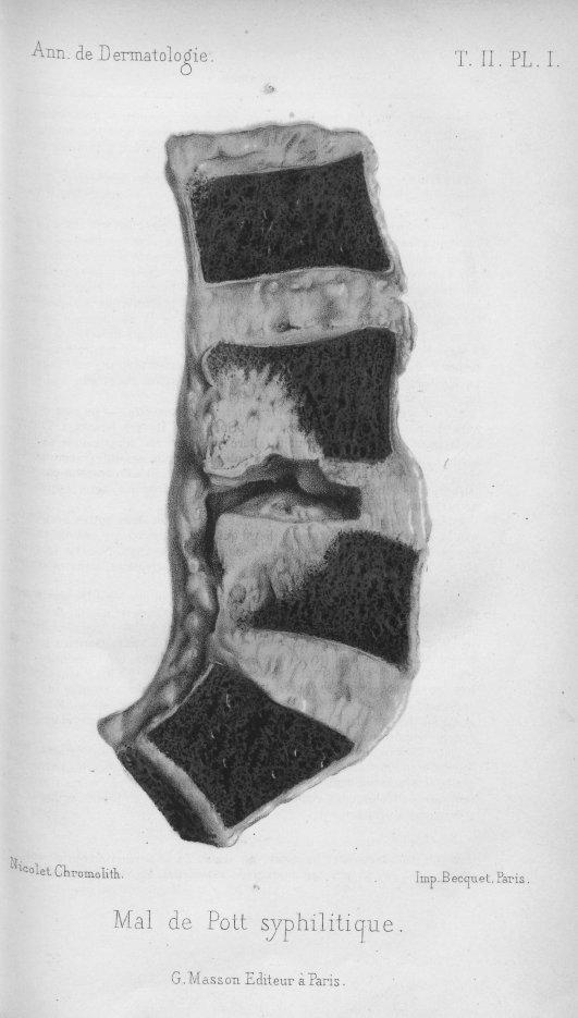 [Un cas de mal de pott d'origine syphilitique, par Alfred Fournier] - Annales de dermatologie et de  [...] -  - med90153x1881x0037