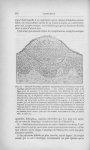 Fig. 12. — Élément d'impétigo pustuleux staphylococcique survenu au cours d'un impétigo phlycténulai [...]