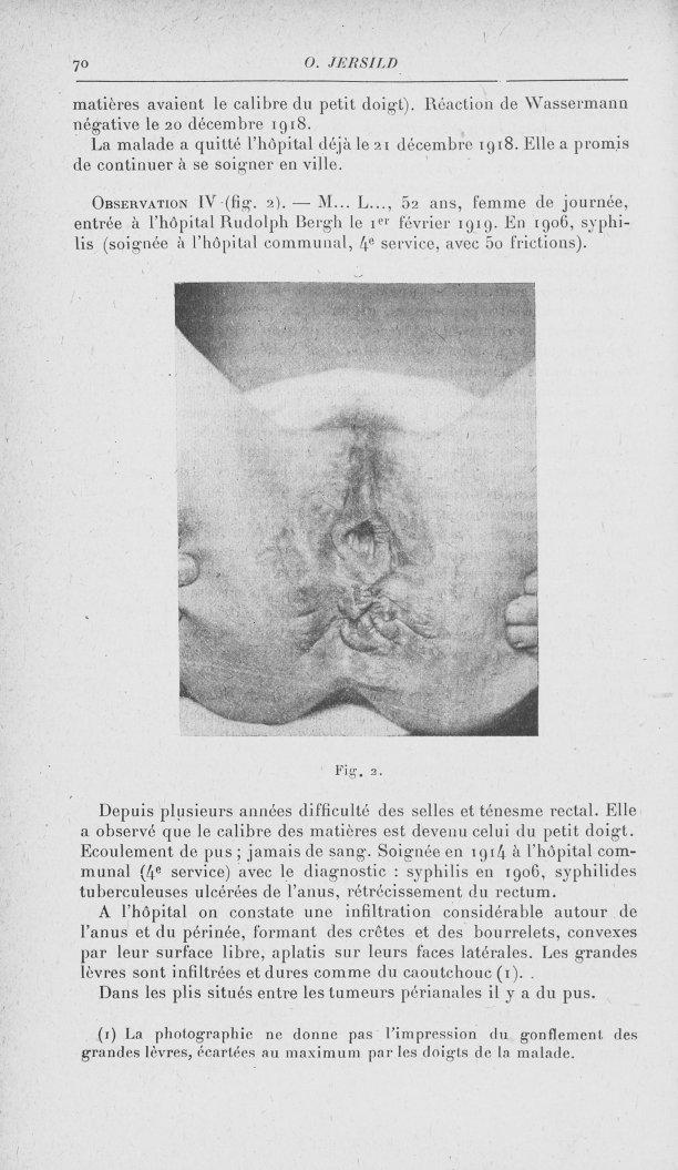 Fig. 2 [Contribution à l'étude de la pathogénie du soi-disant syphilome ano-rectal (Fournier) par Dr [...] -  - med90153x1920x0074