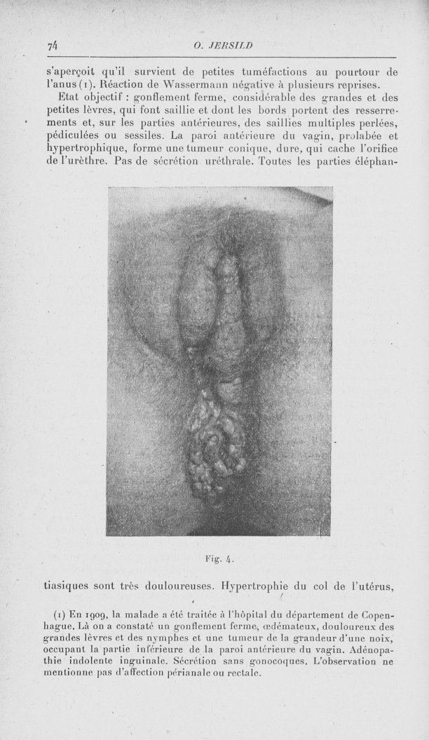 Fig. 4 [Contribution à l'étude de la pathogénie du soi-disant syphilome ano-rectal (Fournier) par Dr [...] -  - med90153x1920x0078
