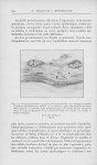 Fig. 1. — Coupe intéressant, au niveau de la partie libre du bourgeon tumoral, l'epiderme profondéme [...]