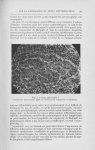Fig. 2. — Rate, observation I. Formation tuberculoïde logée en dedans d'un corpuscule de Malpighi -  [...]