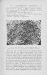 Fig. 4. — Rate, observation ii (Lupus érythémateux aigu). Formation tuberculoïde située dans le rent [...]