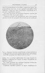 Fig. 6. — Remarquer l'infiltration sous-épidermique et l'aspect trouble de la couche de Malpighi. On [...]