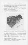 Fig. 6. — Observation III. Microphotographie du point de passage entre l'épithélium de malpighi sain [...]
