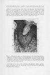 Fig. 3. — Microphotographie à un fort grossissement, d'un foyer d'hyperkératose : a, bouchon d'éléme [...]
