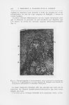 Fig. 6. — Microphotographie à un grossissement moyen montrant un pseudo-globe corné en d ; b, papill [...]