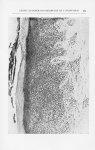 Fig. 2. — Vue histologique d'un endroit du fragment biopsié, montrant un épiderme hyperkératosiqiie  [...]