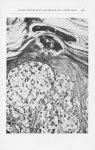 Fig. 5. — Détail de la Fig.ure 3 montrant en surface les thèques que forment les cellules étrangères [...]
