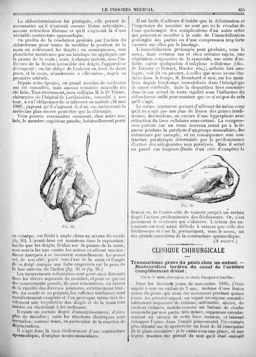 Fig. 94. - [Hospice de la Salpêtrière. - M. Charcot. Sur un cas de contracture spasmodique d'un memb [...] -  - med90170x1886x02x04x0290
