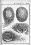 Fig. 1 à 3. Corps de forme ovale et rempli de poils, trouvé dans la matrice d'une fille âgée de cinq [...]