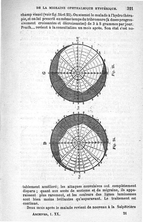 Fig. 24 et 25. Amblyopie légère, diplopie monoculaire et rétrécissement très accentué du champ visue [...] -  - med91155x1890x305_335x0017