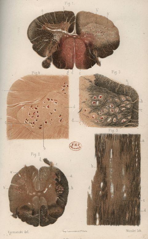 Planche I - Etude anatomique et clinique de la sclérose en plaques -  - medTPAR1885x147x0152